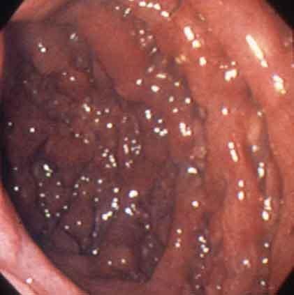 消化管医用画像データベース